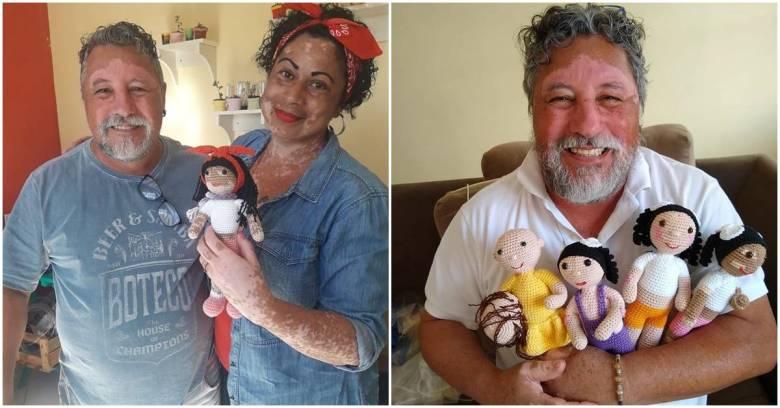 Joao Stanganelli, le Vitiligo et les poupées.